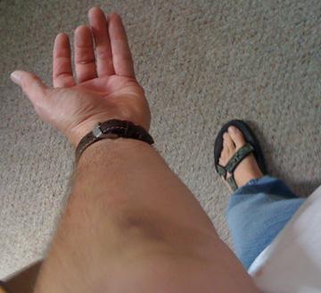 bruise arm